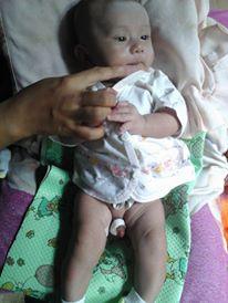Khitan Bayi 2 Khitan tanpa jarum suntik